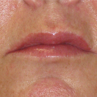 55-64 year old man treated with Lip Augmentation after 3299195