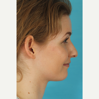 25-34 year old woman treated with Rhinoplasty before 3629395