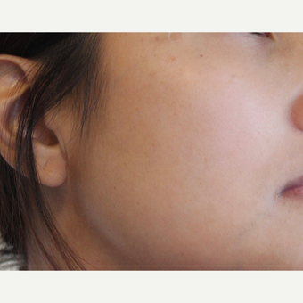 Picosure fractional laser for ethnic skin - Asian skin types after 3583835