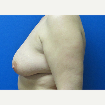 44 year old woman Breast Lift before 3703023
