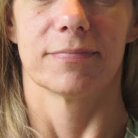 35-44 year old woman treated with Liquid Facelift before 2975063