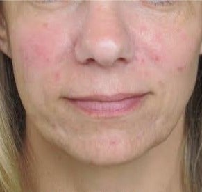 35-44 year old woman treated with Liquid Facelift after 2975063