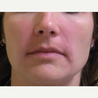 35-44 year old woman treated with Restylane after 3372365