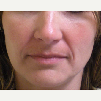 35-44 year old woman treated with Restylane before 3372365