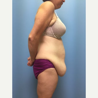 40 year old woman treated with Tummy Tuck before 3036846