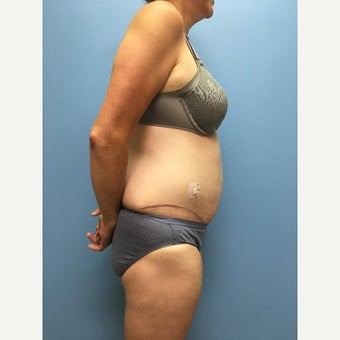 40 year old woman treated with Tummy Tuck after 3036846