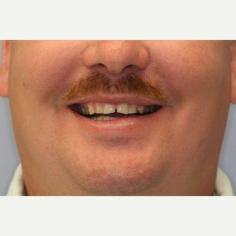 35-44 year old man treated with Smile Makeover