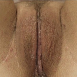 Labiaplasty after 1897540
