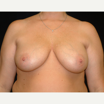 35-44 year old woman treated with Vertical Breast Lift before 3141814