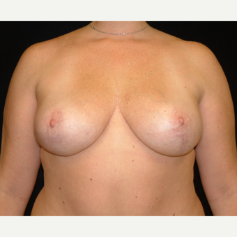 35-44 year old woman treated with Vertical Breast Lift after 3141814