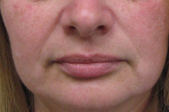Juvederm® before 479029