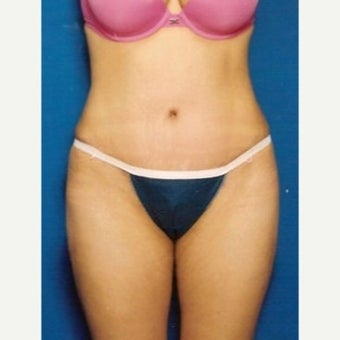 Tummy Tuck after 1632159