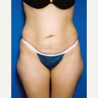 Tummy Tuck before 1632159