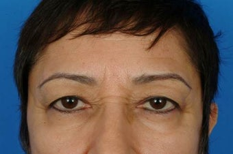 Eyelid surgery before 932333