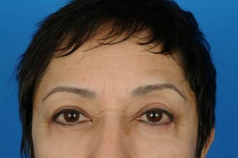 Eyelid surgery after 932333