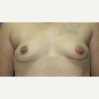 45-54 year old woman treated with Breast Augmentation before 3851630