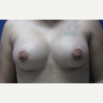 45-54 year old woman treated with Breast Augmentation after 3851630
