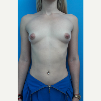 18-24 year old woman treated with Breast Augmentation before 3009353