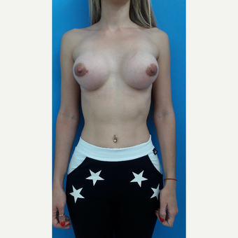 18-24 year old woman treated with Breast Augmentation after 3009353