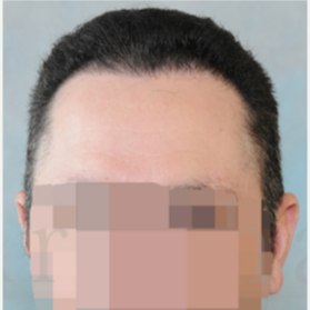 35-44 year old man treated with FUSS Hair Transplant after 3320524