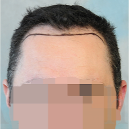 35-44 year old man treated with FUSS Hair Transplant before 3320524