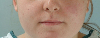 Microfat Lip Injections before 916309