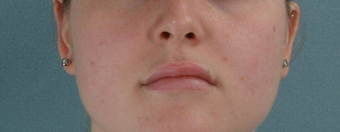 Microfat Lip Injections after 916309