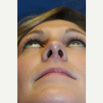 18-24 year old woman treated with Rhinoplasty after 3643450