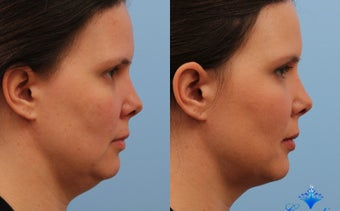 25-34 year old woman treated with Kybella before 3053767