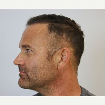 Hair Transplant Result after 3616805