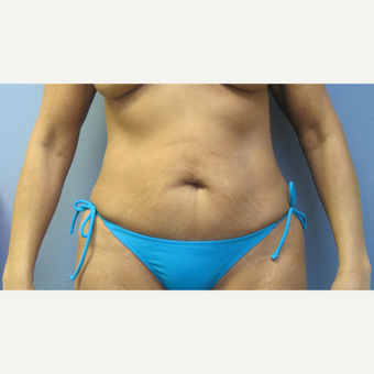 55-64 year old woman treated with Tummy Tuck before 2853408