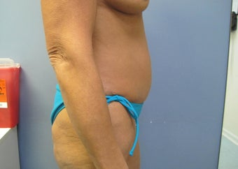 55-64 year old woman treated with Tummy Tuck 2853408