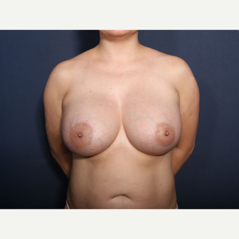 35-44 year old woman treated with Breast Augmentation (view 1 of 2) after 3424900