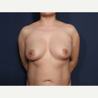 35-44 year old woman treated with Breast Augmentation (view 1 of 2) before 3424900