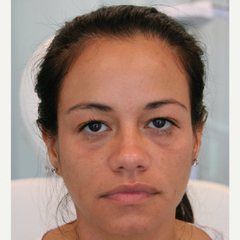 45-54 year old woman treated with Injectable Fillers before 3320139