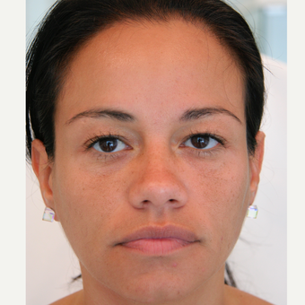 45-54 year old woman treated with Injectable Fillers after 3320139