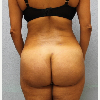 35-44 year old woman treated with Brazilian Butt Lift after 3737117