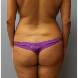 35-44 year old woman treated with Brazilian Butt Lift before 3737117