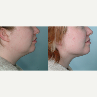55-64 year old man treated with Chin Liposuction before 3642899
