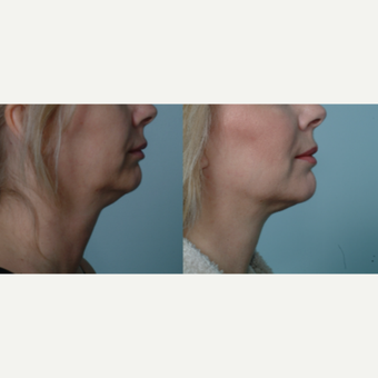 55-64 year old man treated with Chin Liposuction after 3642899