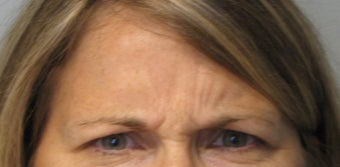 Botox in Glabella Region- Age: 45, Female before 1372956