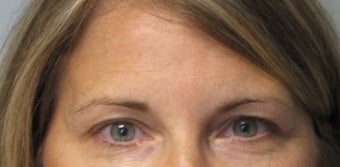 Botox in Glabella Region- Age: 45, Female after 1372956