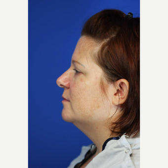 35-44 year old woman treated with Chin Liposuction before 3376952