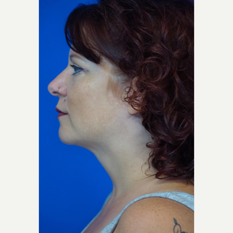 35-44 year old woman treated with Chin Liposuction after 3376952
