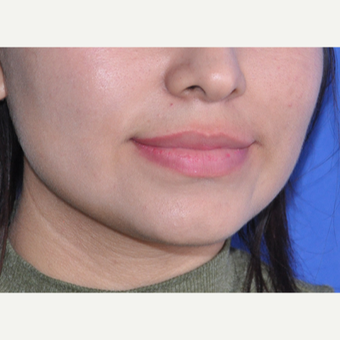 18-24 year old woman treated with Lip Augmentation before 3219605