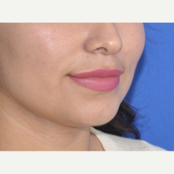 18-24 year old woman treated with Lip Augmentation after 3219605