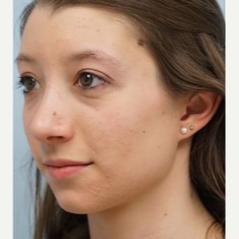 25-34 year old woman treated with Rhinoplasty after 3703410