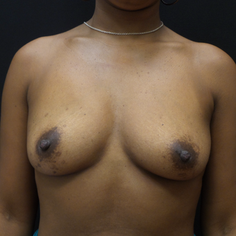 Breast Augmentation before 3007843