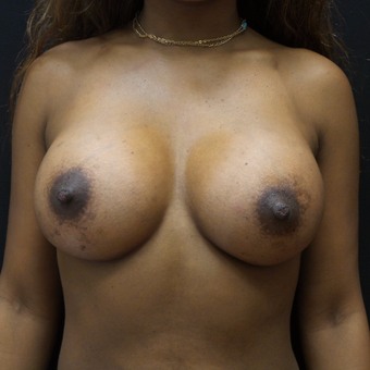 Breast Augmentation after 3007843