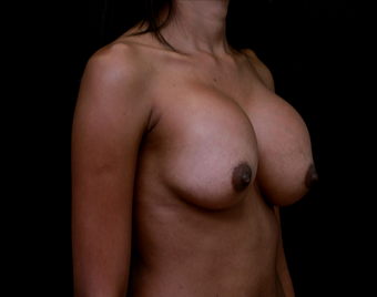 18-24 year old woman treated with Breast Implant Revision before 3735149